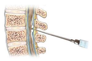 Lumbalpunctio sematikus képe
