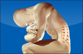 Lumbalpunctio ülő pozíciója