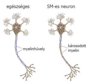 egészséges és SM-es myelin