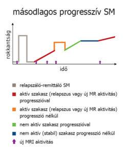 Másodlagos progresszív SM változatai