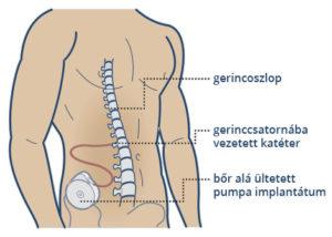 Baclofen pumpa implantátum elhelyezkedése a testen belül