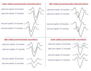 A demyelinizáció és az axonlézió VEP jelei