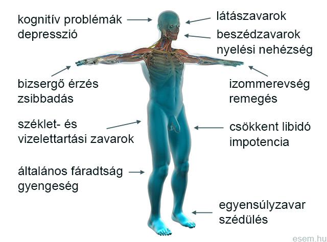 sclerosis multiplex gyenge erekciója