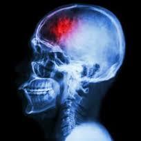 Az interferon-béta majdnem megduplázza az agyvérzés kockázatát