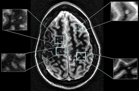 Mi kell egy jó MRI felvételhez?