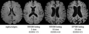 agysorvadás MRI felvétele