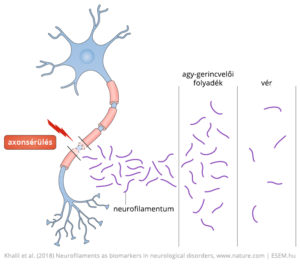 Neurofilamentumok kikerülése az agy-gerincvelői folyadékba és a vérbe