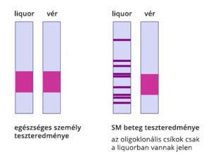 Liquorvizsgálat sematizált eredménye egészséges és SM beteg személynél