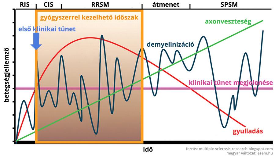 a sclerosis multiplex lefolyása diagramon ábrázolva