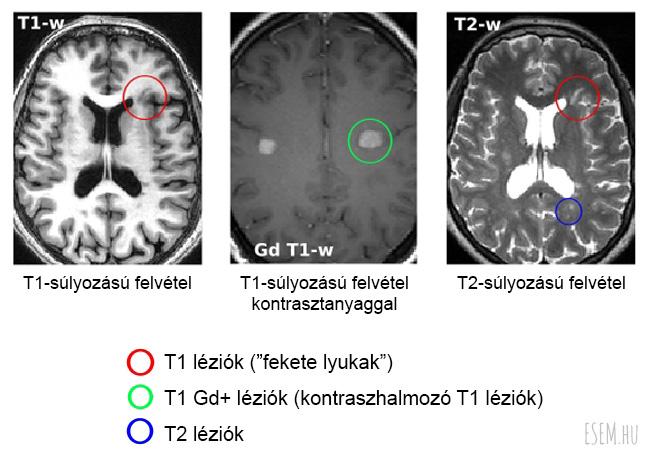 különböző SM léziók T1- és T2-súlyozású felvételeken