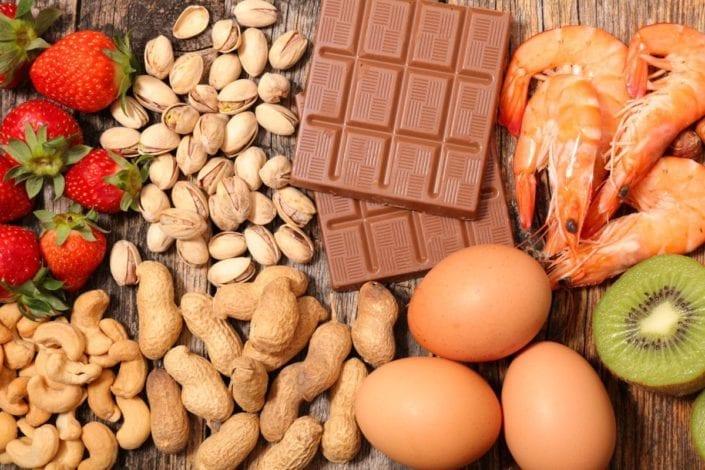 Az ételallergia aktívabb SM-mel jár