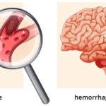 Életveszélyes mellékhatásai is lehetnek a Lemtradának
