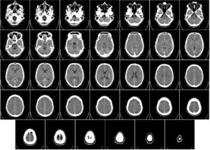 CT felvétel egy emberi agyról