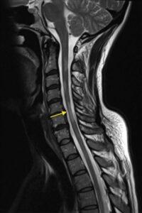 nyaki gerincvelő sorvadásának MRI képe