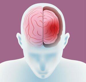 agyi atrófia
