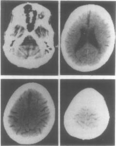 SM beteg CT felvétele (1984)