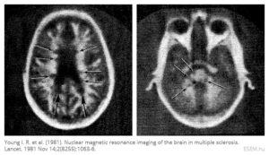 Az első publikált MRI felvételek egy SM beteg agyáról (1981)
