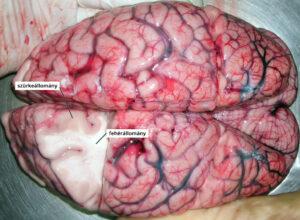 egy boncolt agy szürkeállománya és fehérállománya