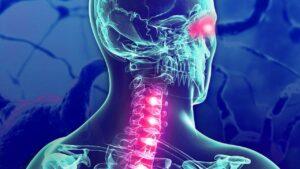 a Devic-szindróma a látóideget és a gerincvelőt érinti