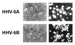 HHV-6A és HHV-6B vírus