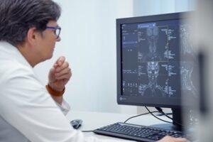 MRI képfeldolgozás